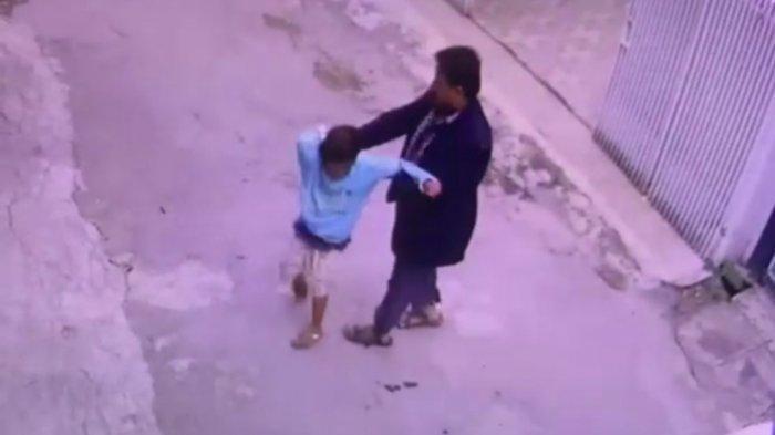 Viral Video Pria Tiba-tiba Pukul Wajah Bocah yang Sedang Jalan, Korban Alami Luka Robek di Bibir
